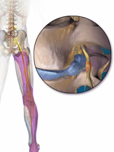 illustration of the sciatic nerve